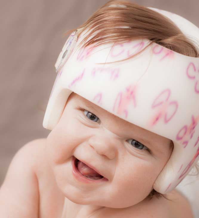 Baby girl wearing a helmet to correct positional plagiocephaly